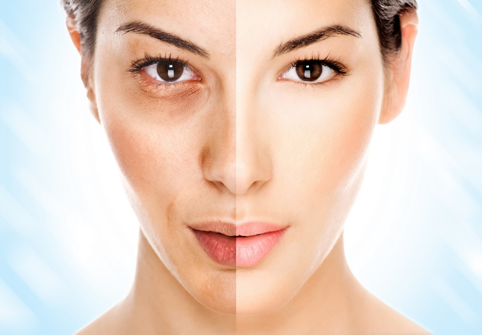 Woman with uneven skin tone on one side and clear skin on the other