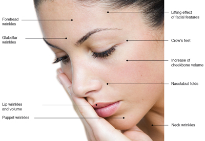 Fillerina effects on areas of face